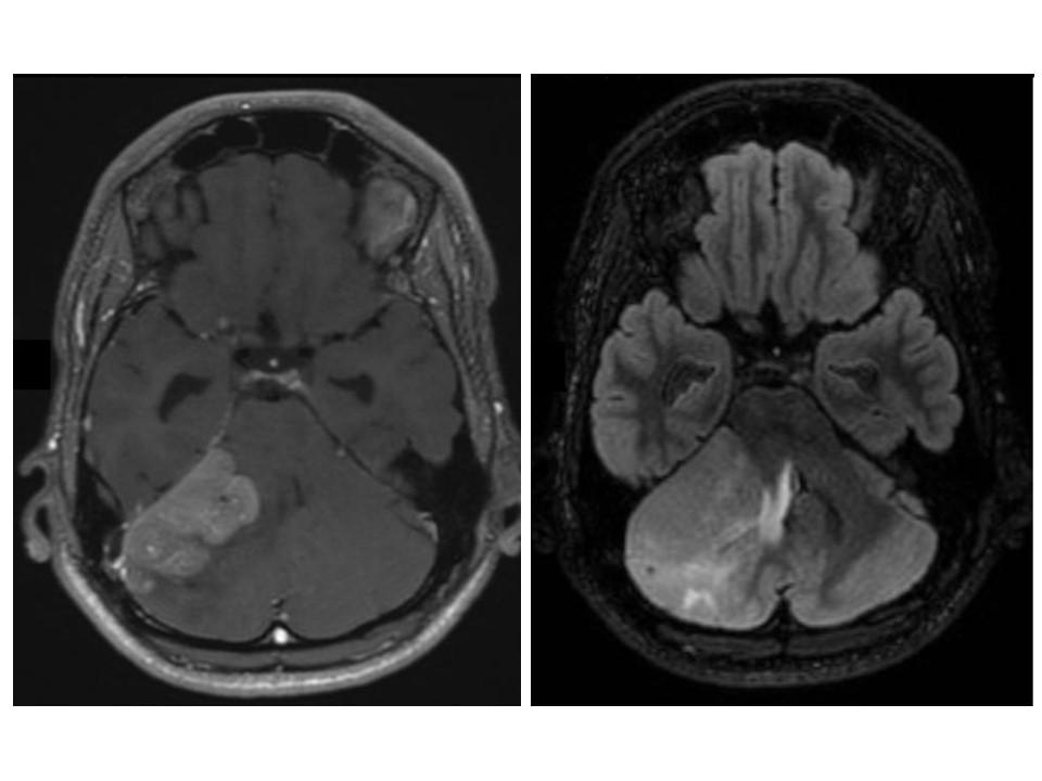 Schema : Brain MRI showing medulloblastoma located on the right hemisphere of the cerebellum
